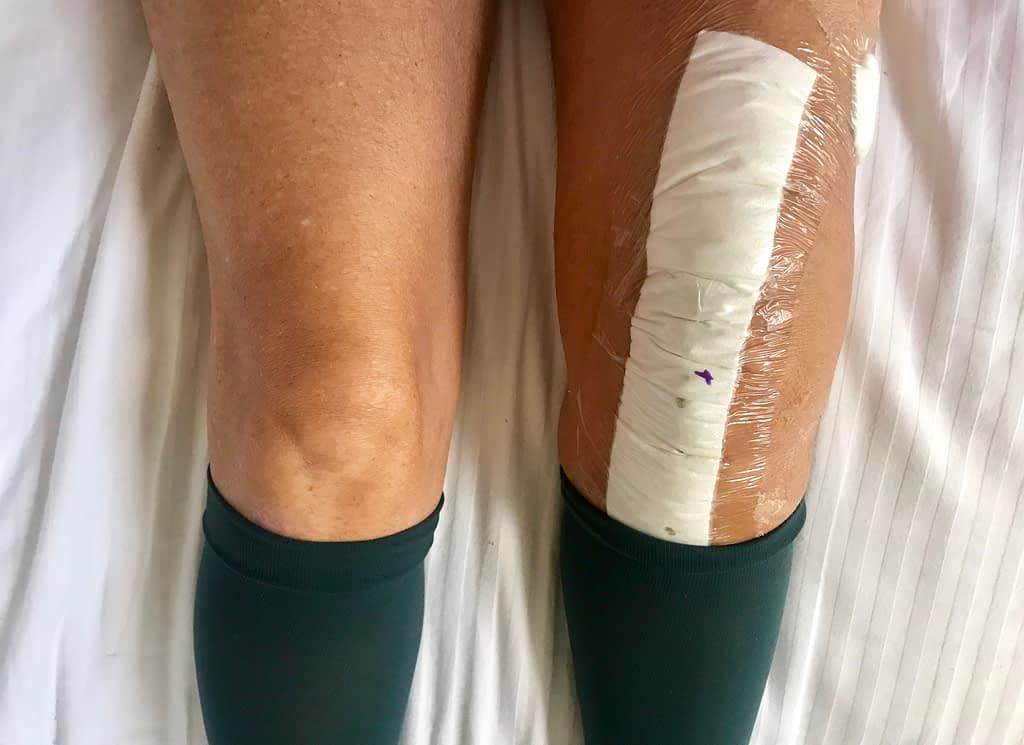 Plaster on TKR wound